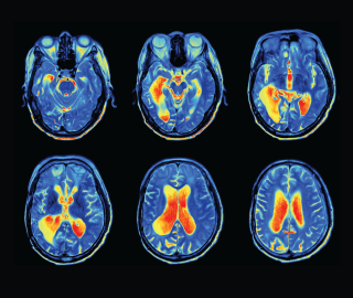 -MRI-scan-of-a-brain-with-heat-maps