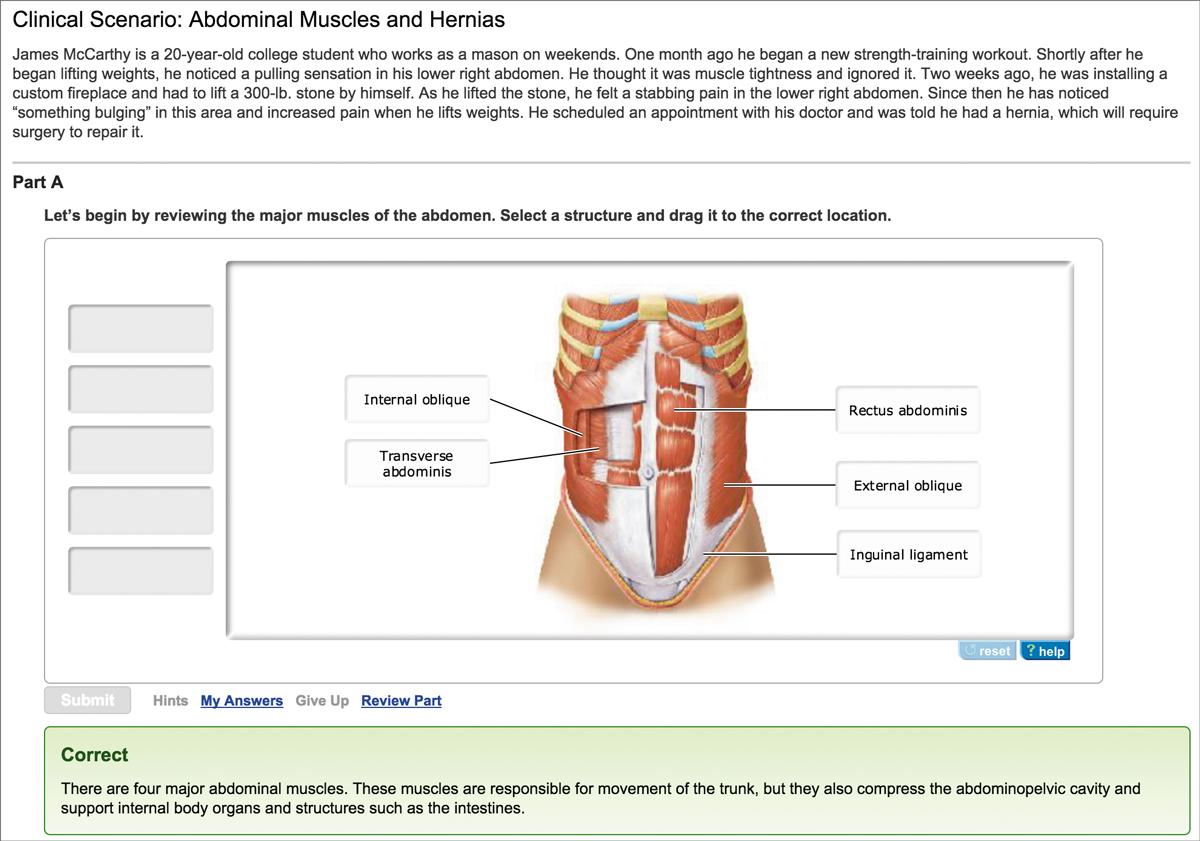 Marieb wilhelm mallatt human anatomy 8th edition pearson clinical scenarios fandeluxe Images